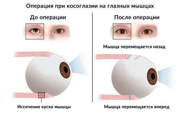 Косоглазие операция