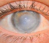 Повреждение роговицы глаза: лечение и возможные последствия